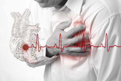 Elektrokardiogram pomaga zdiagnozować arytmię serca.