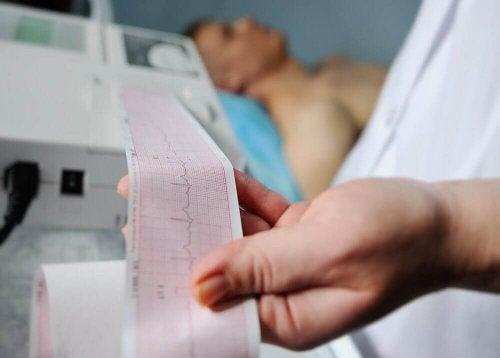 Zawał mięśnia sercowego- ekg