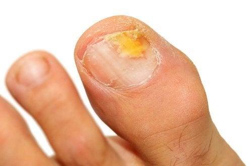 Grzybicze zakażenie paznokci - 5 olejków eterycznych