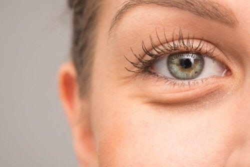 Opuchlizna oczu - 7 możliwych przyczyn