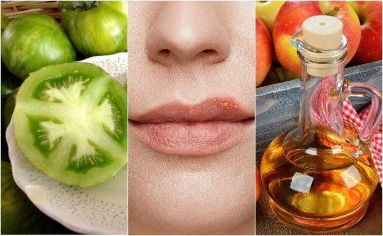 Opryszczka - zwalcz ją 5 naturalnymi sposobami