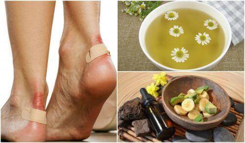 Pęcherze na stopach– 5 naturalnych rozwiązań, aby złagodzić ich skutki