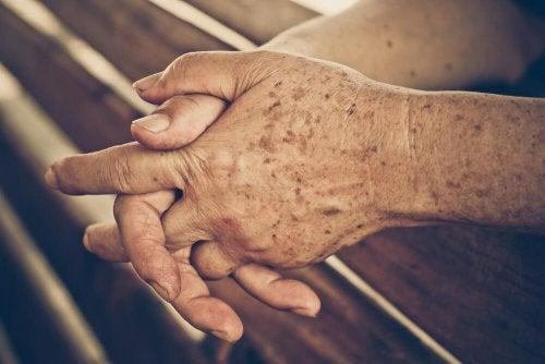Plamy soczewicowate – 5 domowych remediów
