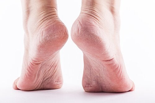 Popękane stopy