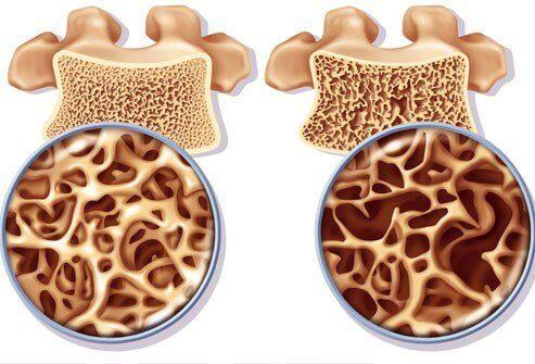 Prewencja osteoporozy gęstość kości