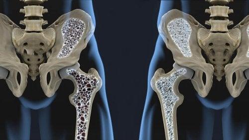 Profilaktyka osteoporozy – 2 koktajle bogate w wapń