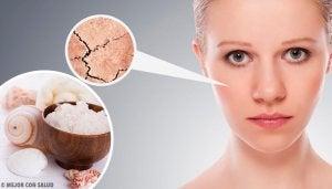 Plamy na twarzy: przyczyny, rodzaje i zabiegi