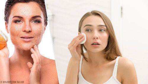 Suchość skóry: jak wyleczyć ją raz na zawsze