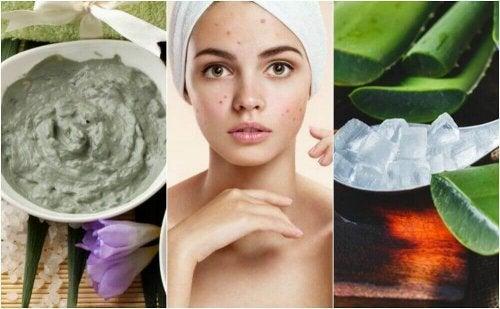 Trądzik na twarzy - 5 naturalnych metod leczenia
