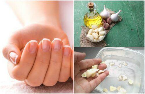 Wzrost paznokci – 5 domowych zabiegów w celu jego przyspieszenia