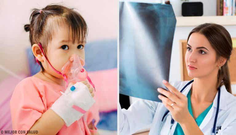 Zapalenie płuc - dowiedz się jak je leczyć
