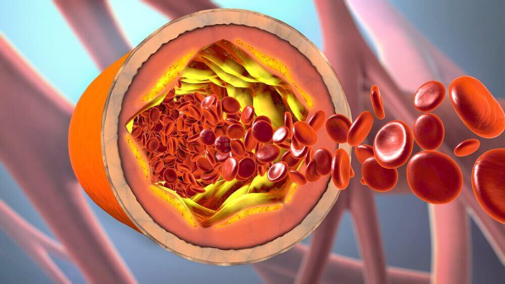 Złogi cholesterolu wewnątrz naczyń krwionośnych