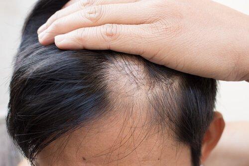 Łysienie plackowate często prowadzi do zaniku włosów nad czołem.