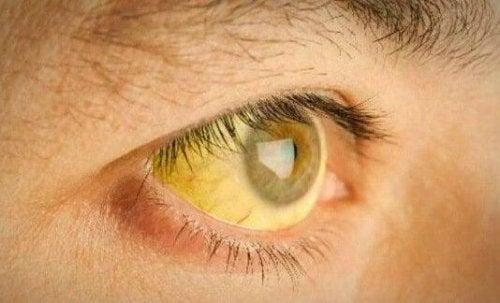 Objawy niedoboru witamin- żółtaczka