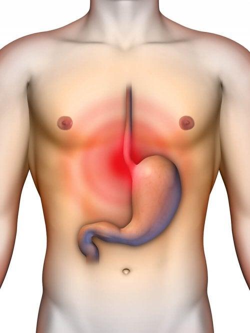 Środek zobojętniający kwas żołądkowy – 4 sposoby na refluks