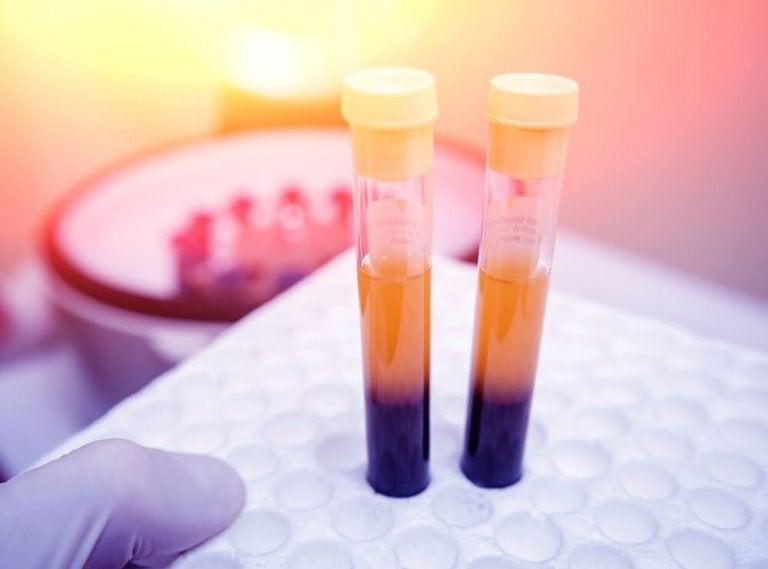 Trombocytopenia - remedia na wzrost liczby płytek krwi