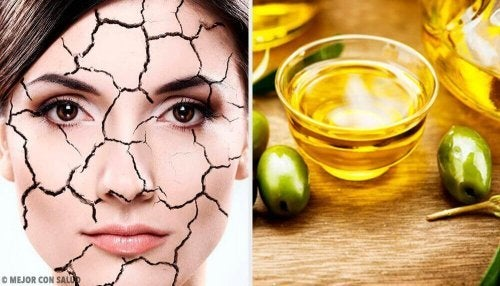 Sucha skóra – naturalne sposoby na jej ukojenie
