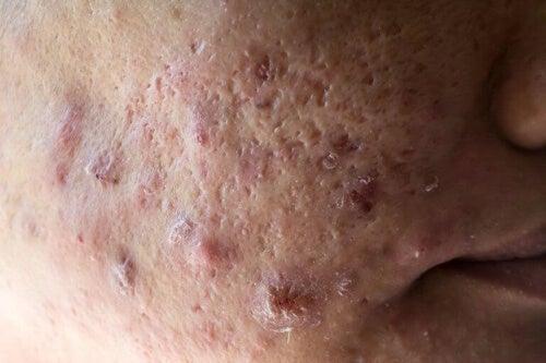 Bazylia to jeden z najskuteczniejszych środków leczących trądzik.