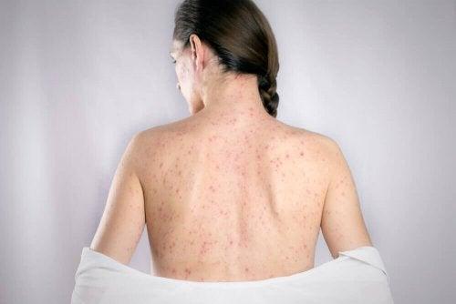 Opryszczka na plecach – zwalcz ją tymi 5 produktami