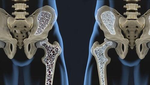 Zapobieganie osteoporozie - struktura kości