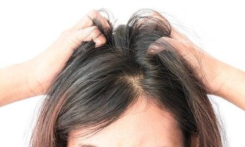 Swędzenie głowy – 5 naturalnych sposobów na ukojenie