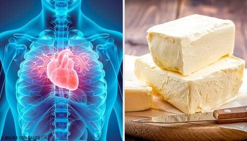 Żywność szkodliwa dla serca – unikaj tych 5 produktów