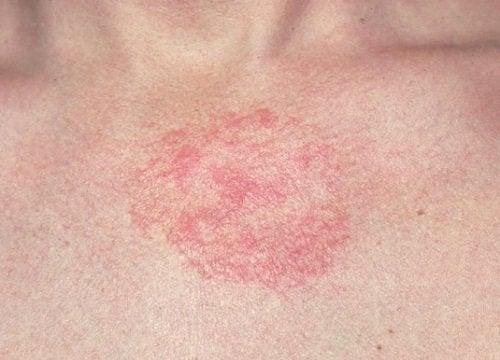 Atopowe zapalenie skóry – jak przynieść sobie ulgę?