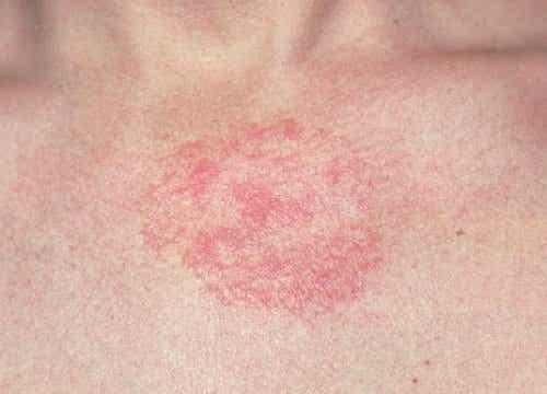 Atopowe zapalenie skóry - jak przynieść sobie ulgę?