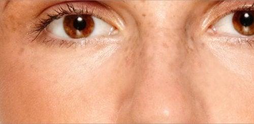 melasma na twarzy kobieta