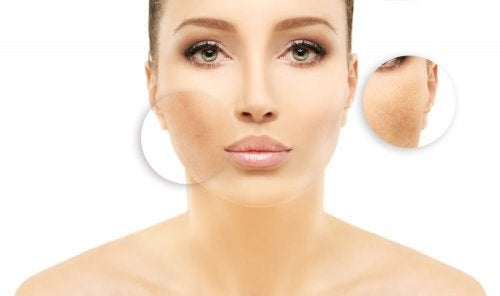 Przebarwienia skóry – sprawdzone domowe sposoby!