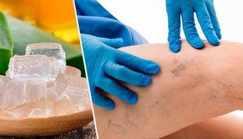 Naturalne leczenie żylaków – kilka opcji dla Ciebie