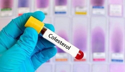 Podwyższony cholesterol – 6 naturalnych remediów