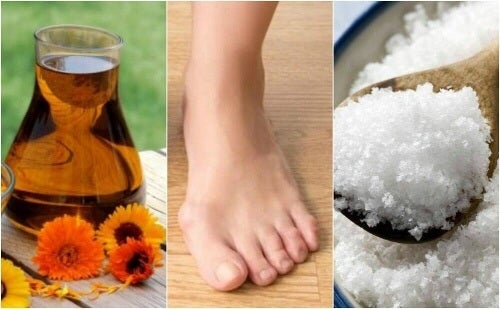 Naturalne lekarstwa na haluksy – 4 sprawdzone metody