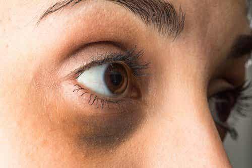 Sińce pod oczami - rozjaśnij je olejkami eterycznymi