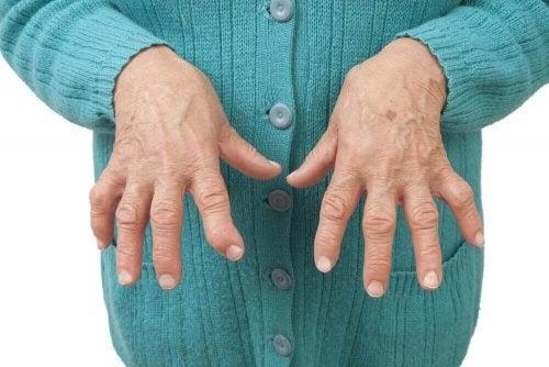 Reumatoidalne zapalenie stawów - naturalne remedia