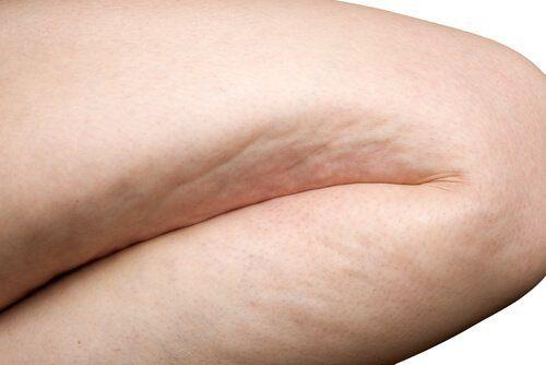 Cellulit na udzie