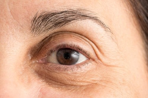 Cienie pod oczami: 5 naturalnych metod