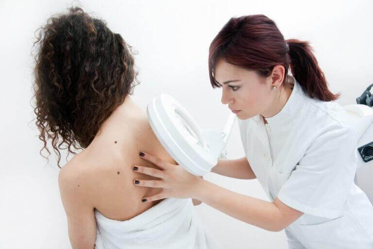 Dermatolog bada nietypowy pieprzyk na plecach