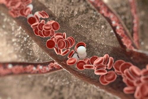 grafika czyszczenie tętnic