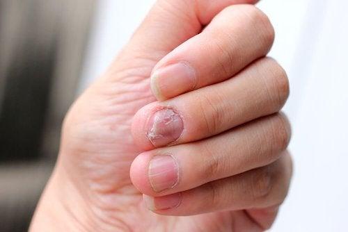 Łuszczyca na paznokciach – jak ją zwalczyć?
