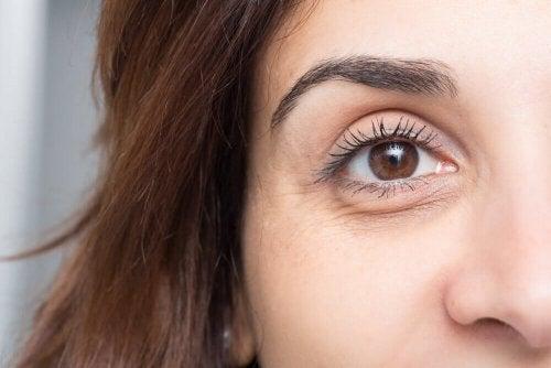 Obrzęk pod oczami – 10 niezawodnych sposobów!