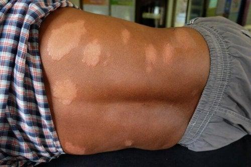 Choroba Hansena - naturalne środki przynoszące ulgę