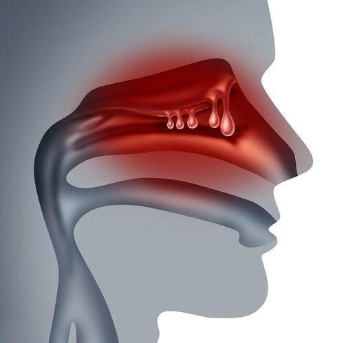 Polipy w nosie - 5 domowych sposobów leczenia