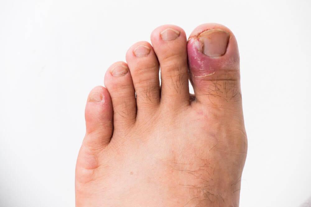 wrośnięte paznokcie
