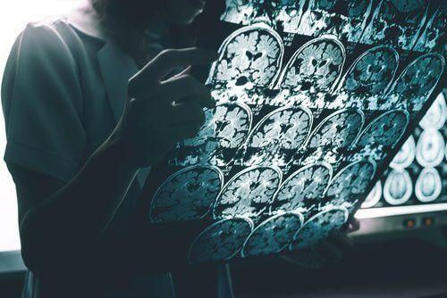 Badanie mózgu