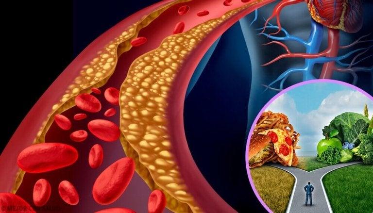 Niedrożność tętnicy