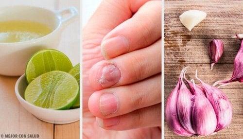 Grzybica paznokci - domowe środki pomagające w jej leczeniu