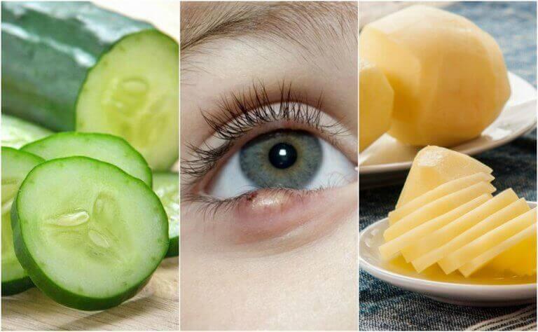 Jęczmień na oku - 5 naturalnych sposobów leczenia