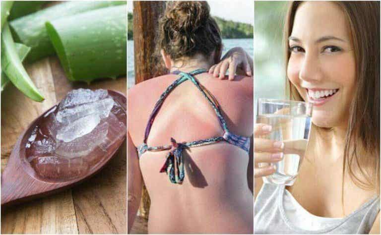 Oparzenia słoneczne - 9 sposobów ich leczenia