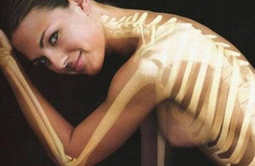 Zdrowe kości.